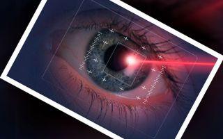 Лучшие клиники по лазерной коррекции зрения в Москве: ТОП-10