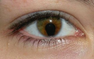 Что такое колобома радужки, как ее лечить, опасна ли она для зрения и здоровья