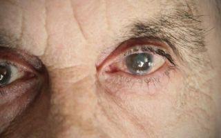 Что делать, если у человека мутные глаза и падает зрение?