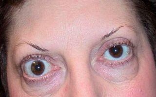 Причины развития эндокринной офтальмопатии — эффективные варианты лечения