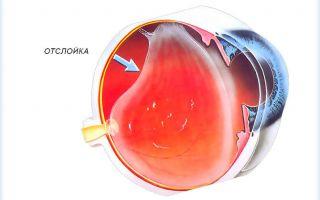 Отслойка стекловидного тела — что это такое, причины и лечение патологии