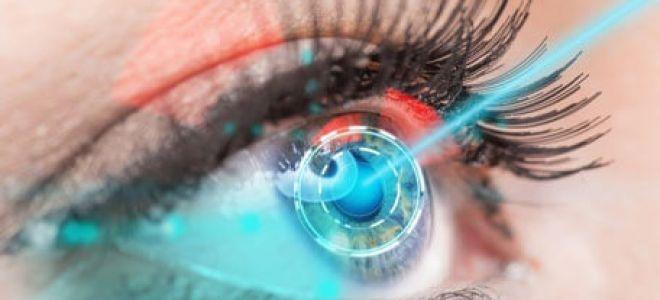 Приступ закрытоугольной глаукомы