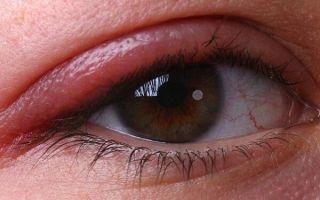 Особенности аллергического блефарита у взрослых и детей: симптомы, причины и лечение