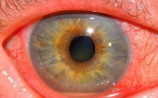 Иридоциклит глаз (передний увеит) простыми словами: лечение, симптомы, профилактика