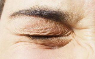 Почему дергается нижнее веко глаза: причины и эффективное лечение