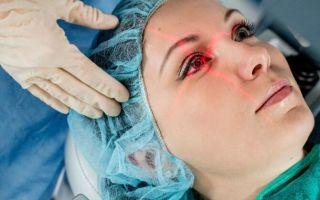 Операция ФРК глаза — современный метод коррекции зрительных нарушений