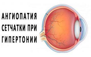 Причины развития гипертонической ангиопатии сетчатки — есть ли шанс вернуть зрение