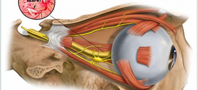 Особенности неврита зрительного нерва, его виды, симптомы и способы терапии
