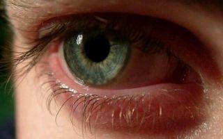 Причины и лечение отека роговицы: опасно ли состояние для зрения?