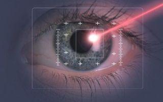 Лечение близорукости при помощи лазера: навсегда ли коррекция избавит от очков