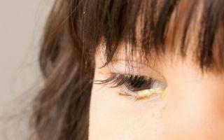 Слизь и выделения из глаз: неожиданные причины и лечение