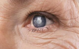 Что такое катаракта: все о болезни и лечении
