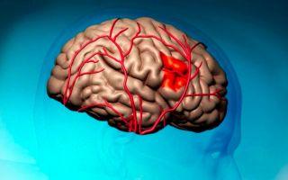 Как восстановить зрение после инсульта — выбор терапии и рекомендации по лечению