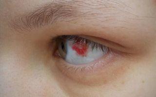 Что делать, если лопнул сосуд в глазу: эффективные средства и рецепты