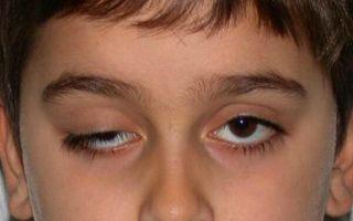 Можно ли вылечить синдром Маркуса Гунна, как определить и профилактировать болезнь