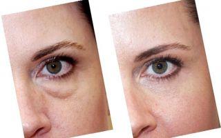 Грыжи верхнего и нижнего века глаза — когда стоит делать операцию