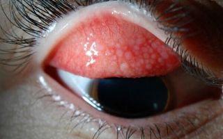 Что такое папиллярный конъюнктивит и как его правильно лечить?