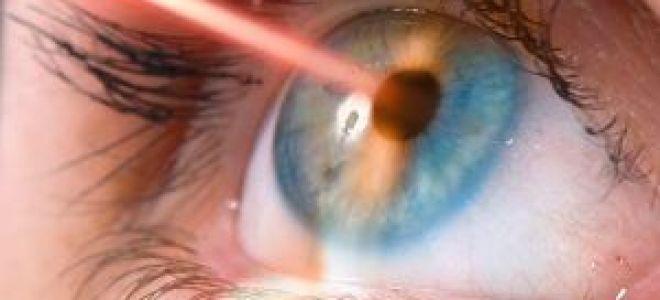 Коррекция зрения — методы исправления дефектов