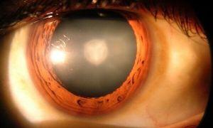 Причины и лечение вторичной катаракты после замены хрусталика