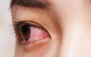 Осторожно, конъюнктивит: что это такое, лечение, причины, симптомы у взрослых