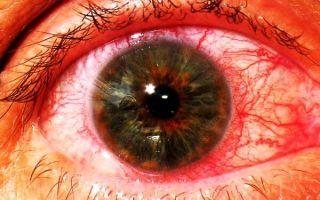 Что такое ирит (воспаление радужки глаза) и как его вылечить