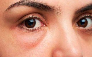 Быстрое снятие отека с глаз — самые эффективные способы