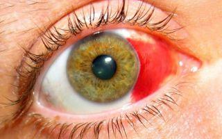 Что такое гемофтальм глаза — чем опасно заболевание для зрения человека