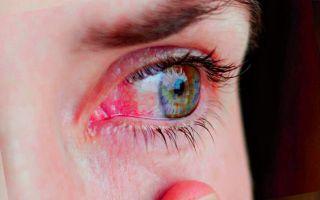 Попал песок в глаза ребенку — что делать?