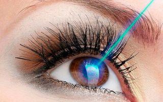 Эффективность лазерной иридэктомии при глаукоме — отзывы пациентов