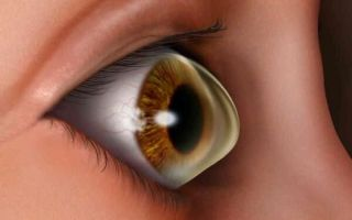 Что такое кератоконус глаз: причины, симптомы и возможные методы лечения