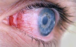 Что такое аллергическая форма конъюнктивита и как с ней бороться?