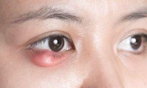 Халязион на нижнем веке: симптомы и эффективное лечение