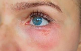 Почему под глазами и вокруг появляются красные пятна: диагностика и действенное лечение