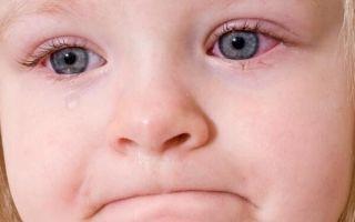 Особенности вирусного конъюнктивита глаз у ребенка: лечение, симптомы, профилактика