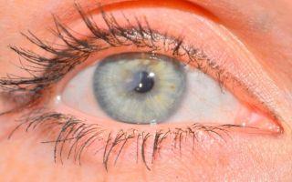 Что такое эрозия глаза — чем опасно заболевание