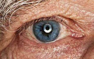 Все о старческой катаракте: виды, причины, лечение и когда нужно бить тревогу?