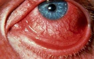 Лечение и симптомы геморрагического конъюнктивита – что нужно знать