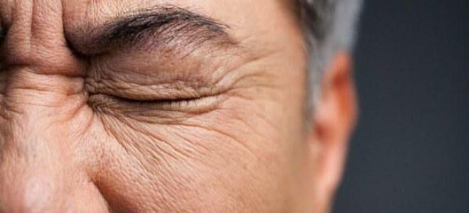Что такое блефароспазм и возможно ли его вылечить навсегда?
