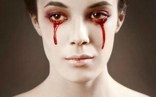 Почему идет кровь из глаза и что делать в такой ситуации?