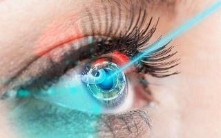 Особенности лечения катаракты лазером: подготовка, ход операции и восстановление, стоимость
