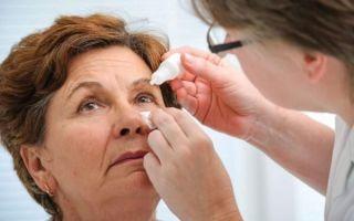 Капли для лечения глаукомы: какие лучше выбрать