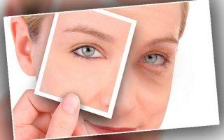 Применение Дермахила от мешков под глазами: что это за препарат и какого эффекта ждать?