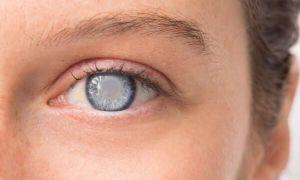 Глаукома глаз – что это такое: причины, своевременная диагностика, лечение