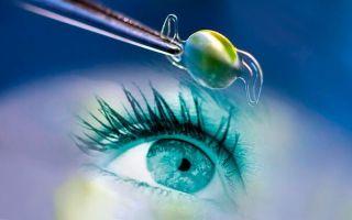 Что из себя представляет искусственный хрусталик глаза — ТОП-3 производителей