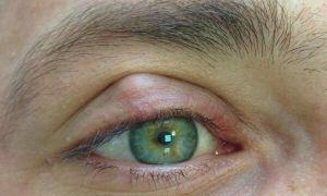 Что такое халязион на глазу: лечение, причины, симптомы, опасность