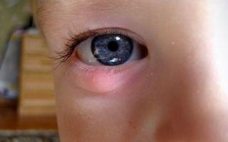 Халязион на веке у ребенка: как определить и что делать