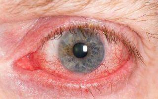 Белки глаз красные — возможные причины и эффективное лечение