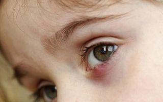 Все о ячмене на глазу у ребенка: первые симптомы и лечение