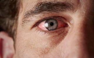 Что такое ангулярный конъюнктивит и как его лечить?
