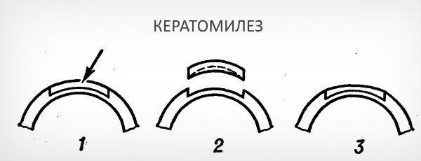 Кератомилез